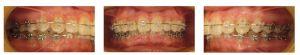 Nach Ausformung der Zahnbögen