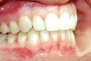 Mit guter Prophylaxe bleiben ihre Zähne und ihr Zahnfleisch gesund!